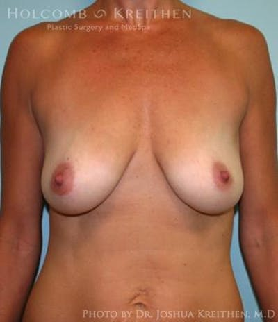 Breast Augmentation with Lift Gallery - Patient 6276460 - Image 1