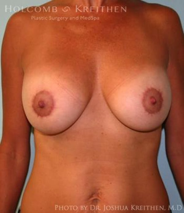 Breast Augmentation with Lift Gallery - Patient 6276460 - Image 2