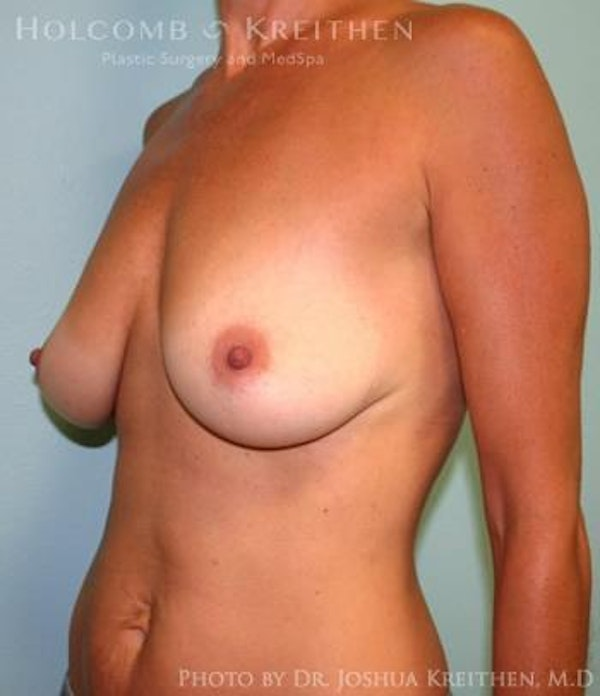 Breast Augmentation with Lift Gallery - Patient 6276460 - Image 3