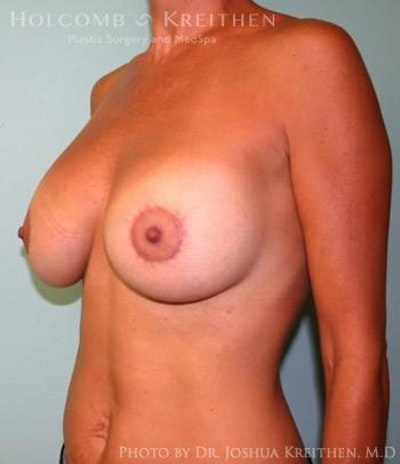 Breast Augmentation with Lift Gallery - Patient 6276460 - Image 4