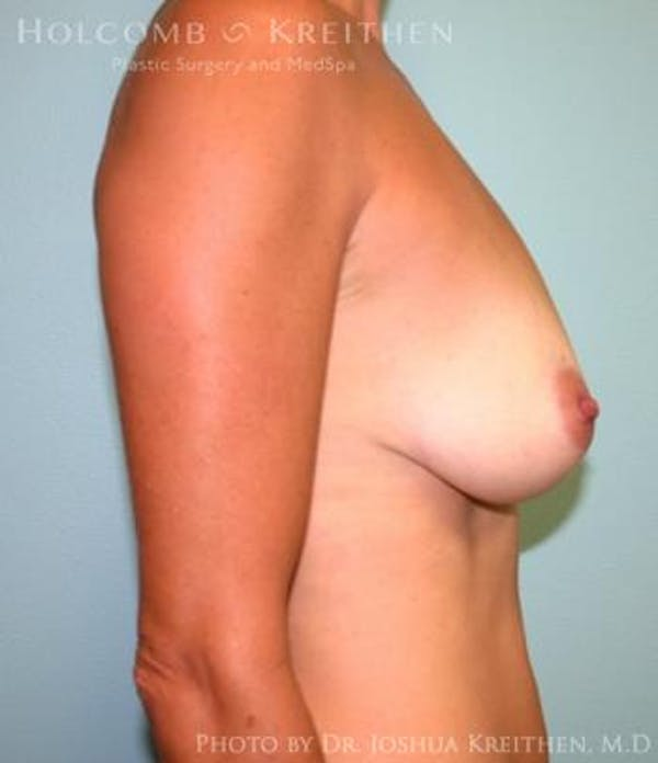 Breast Augmentation with Lift Gallery - Patient 6276460 - Image 5