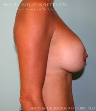 Breast Augmentation with Lift Gallery - Patient 6276460 - Image 6