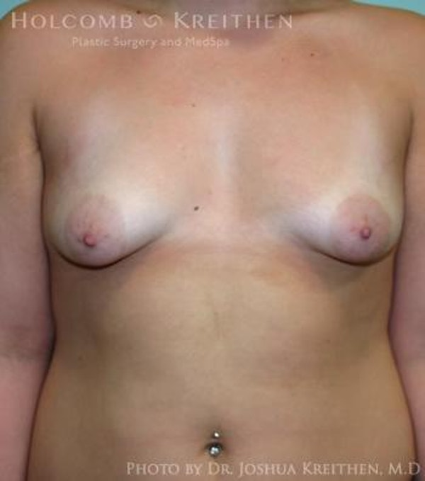 Breast Augmentation with Lift Gallery - Patient 6276462 - Image 1