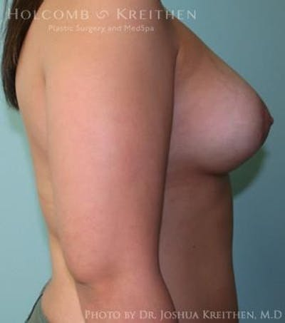 Breast Augmentation with Lift Gallery - Patient 6276462 - Image 6