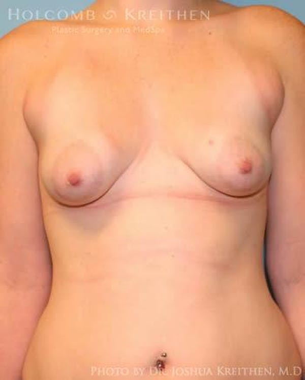 Breast Augmentation with Lift Gallery - Patient 6276464 - Image 1
