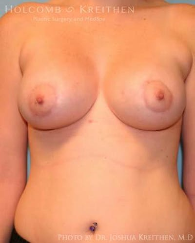 Breast Augmentation with Lift Gallery - Patient 6276464 - Image 2