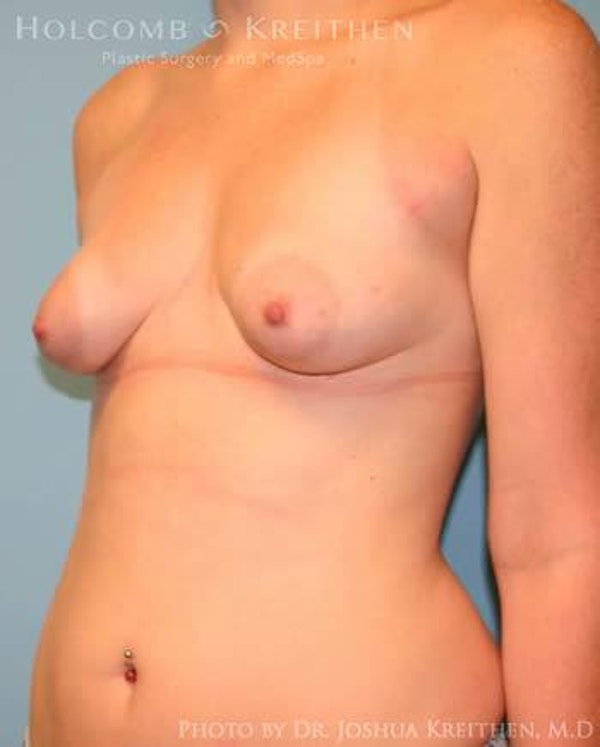 Breast Augmentation with Lift Gallery - Patient 6276464 - Image 3