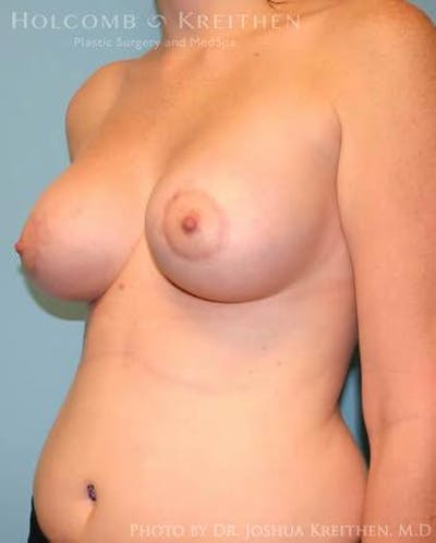 Breast Augmentation with Lift Gallery - Patient 6276464 - Image 4