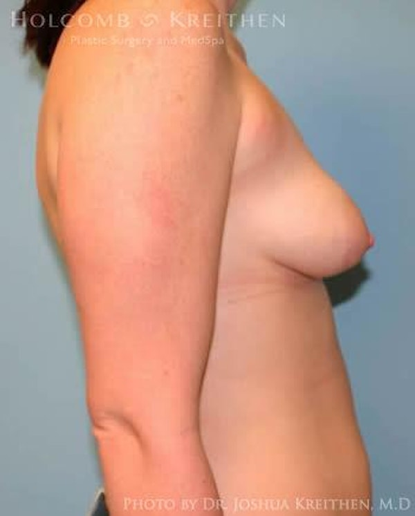 Breast Augmentation with Lift Gallery - Patient 6276464 - Image 5