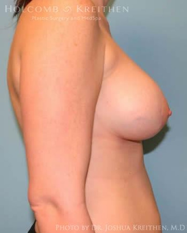 Breast Augmentation with Lift Gallery - Patient 6276464 - Image 6