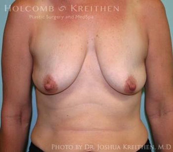 Breast Augmentation with Lift Gallery - Patient 6276465 - Image 1