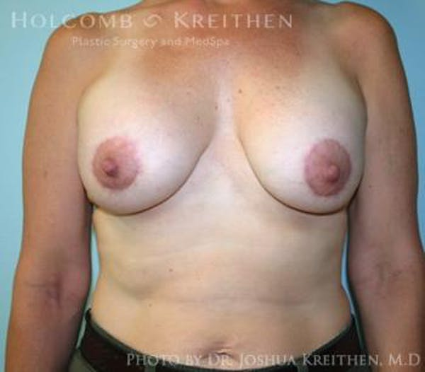 Breast Augmentation with Lift Gallery - Patient 6276465 - Image 2