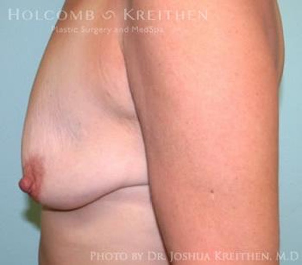 Breast Augmentation with Lift Gallery - Patient 6276465 - Image 3