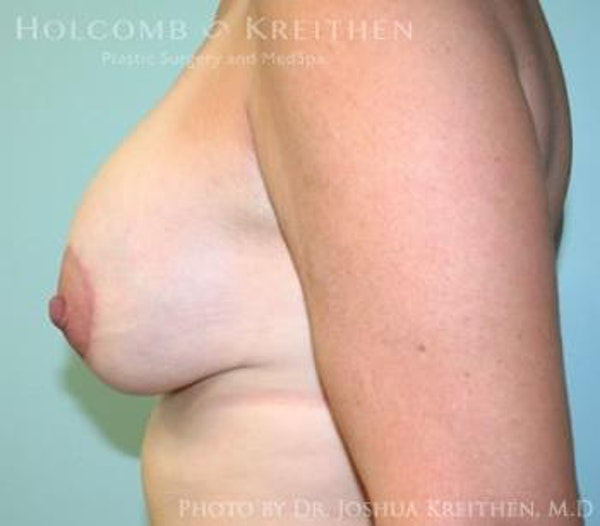 Breast Augmentation with Lift Gallery - Patient 6276465 - Image 4