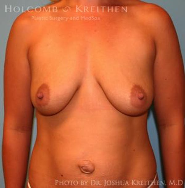 Breast Augmentation with Lift Gallery - Patient 6276467 - Image 1