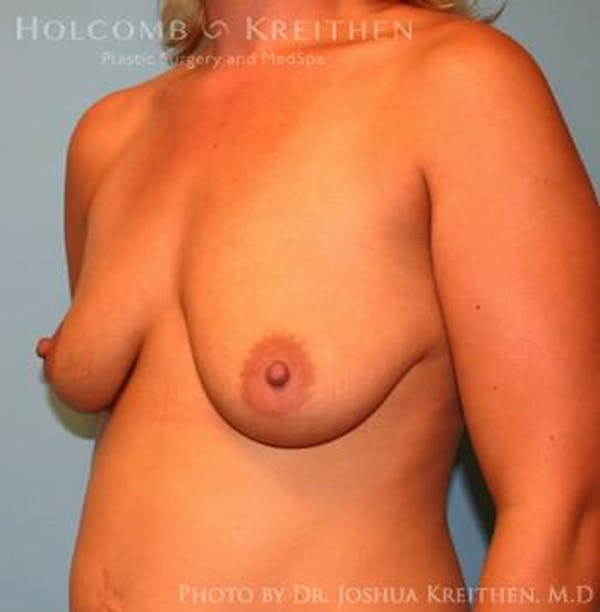 Breast Augmentation with Lift Gallery - Patient 6276467 - Image 3