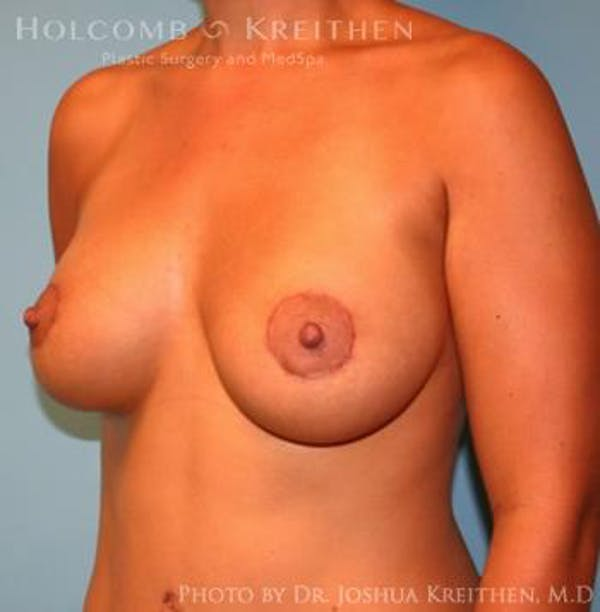 Breast Augmentation with Lift Gallery - Patient 6276467 - Image 4