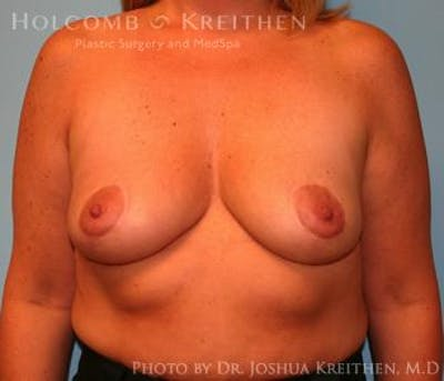 Breast Augmentation with Lift Gallery - Patient 6276468 - Image 1
