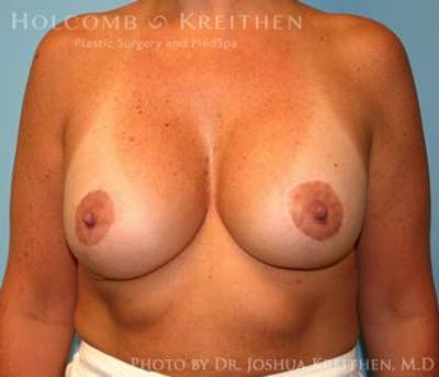 Breast Augmentation with Lift Gallery - Patient 6276468 - Image 2