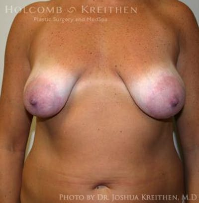 Breast Augmentation with Lift Gallery - Patient 6276469 - Image 7