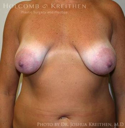 Breast Augmentation with Lift Gallery - Patient 6276469 - Image 1