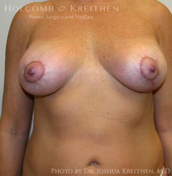 Breast Augmentation with Lift Gallery - Patient 6276469 - Image 2