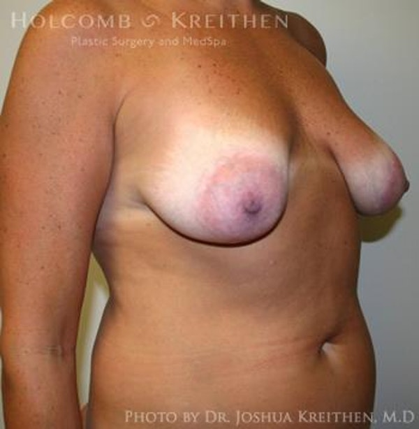 Breast Augmentation with Lift Gallery - Patient 6276469 - Image 3