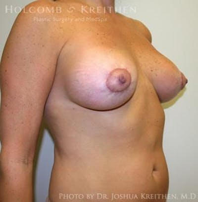 Breast Augmentation with Lift Gallery - Patient 6276469 - Image 4