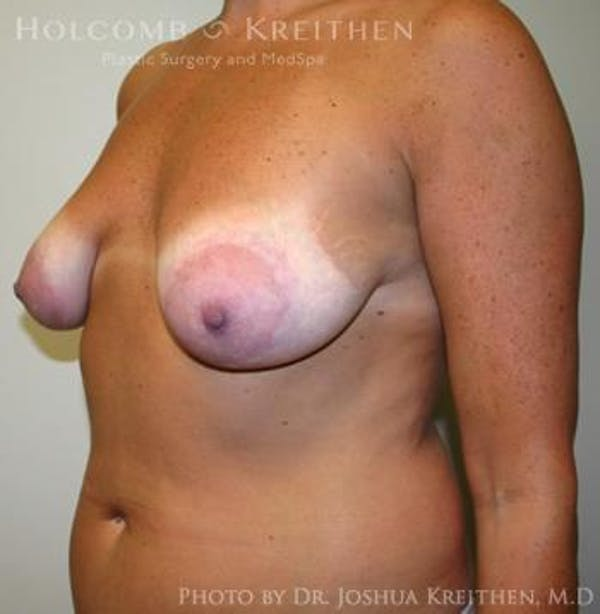 Breast Augmentation with Lift Gallery - Patient 6276469 - Image 5