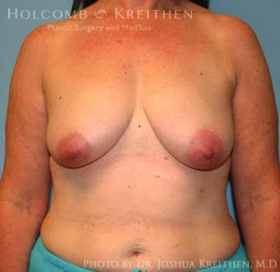 Breast Augmentation with Lift Gallery - Patient 6276470 - Image 8