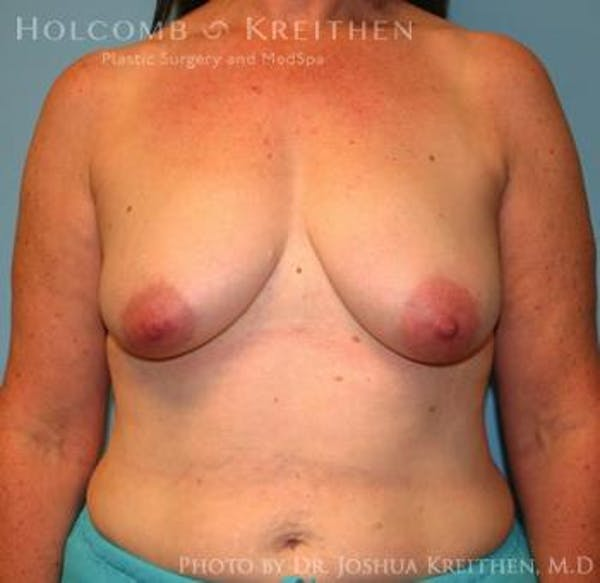 Breast Augmentation with Lift Gallery - Patient 6276470 - Image 1