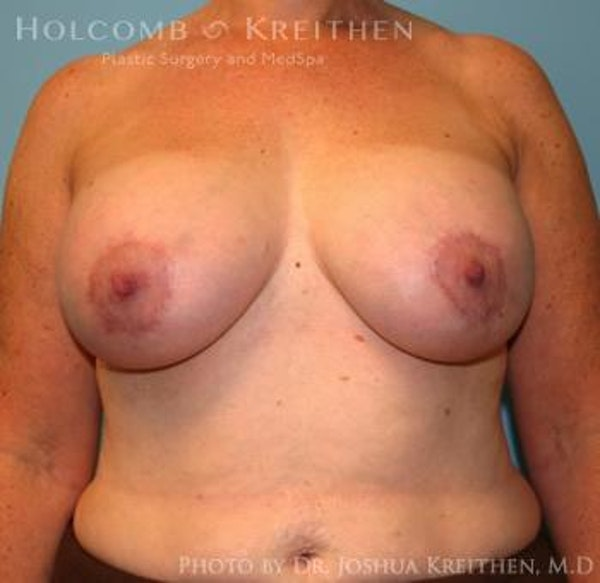 Breast Augmentation with Lift Gallery - Patient 6276470 - Image 2