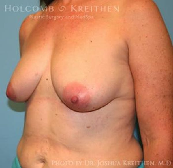 Breast Augmentation with Lift Gallery - Patient 6276470 - Image 3