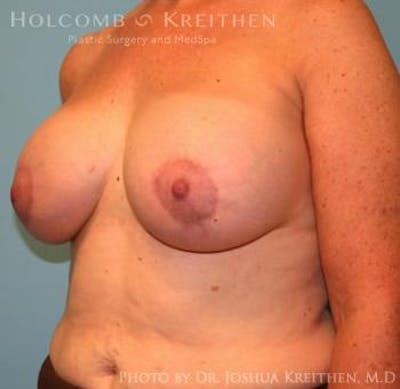 Breast Augmentation with Lift Gallery - Patient 6276470 - Image 4