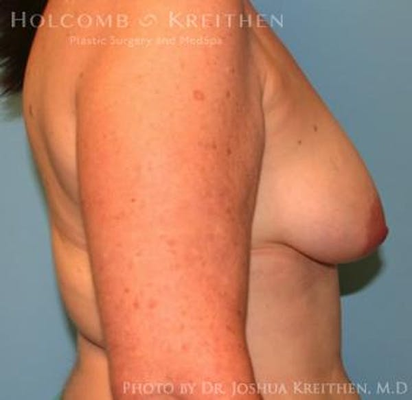 Breast Augmentation with Lift Gallery - Patient 6276470 - Image 5