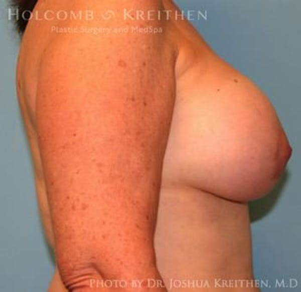 Breast Augmentation with Lift Gallery - Patient 6276470 - Image 6