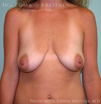Breast Augmentation with Lift Gallery - Patient 6276472 - Image 1
