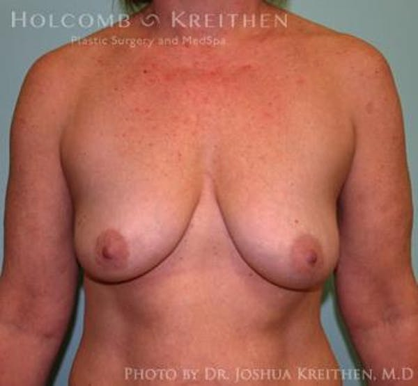 Breast Augmentation with Lift Gallery - Patient 6276476 - Image 1