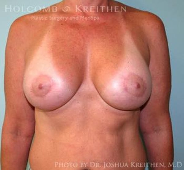 Breast Augmentation with Lift Gallery - Patient 6276476 - Image 2