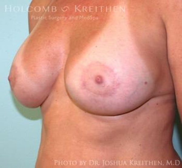 Breast Augmentation with Lift Gallery - Patient 6276476 - Image 4