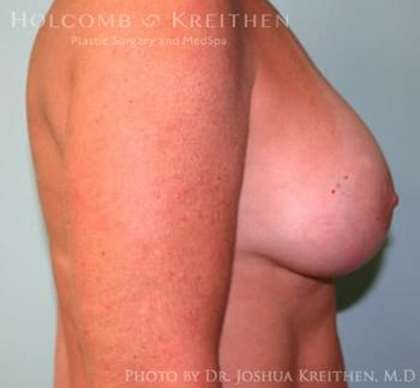 Breast Augmentation with Lift Gallery - Patient 6276476 - Image 6