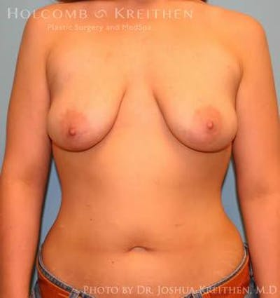 Breast Augmentation with Lift Gallery - Patient 6276478 - Image 1
