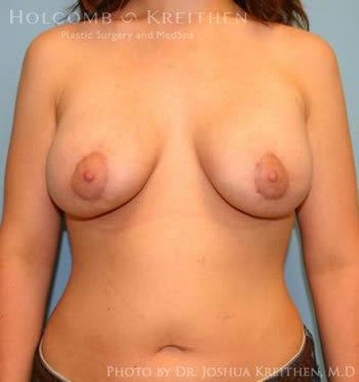 Breast Augmentation with Lift Gallery - Patient 6276478 - Image 2