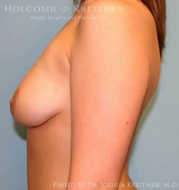Breast Augmentation with Lift Gallery - Patient 6276478 - Image 3