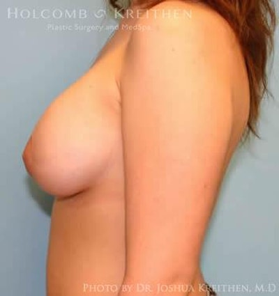 Breast Augmentation with Lift Gallery - Patient 6276478 - Image 4