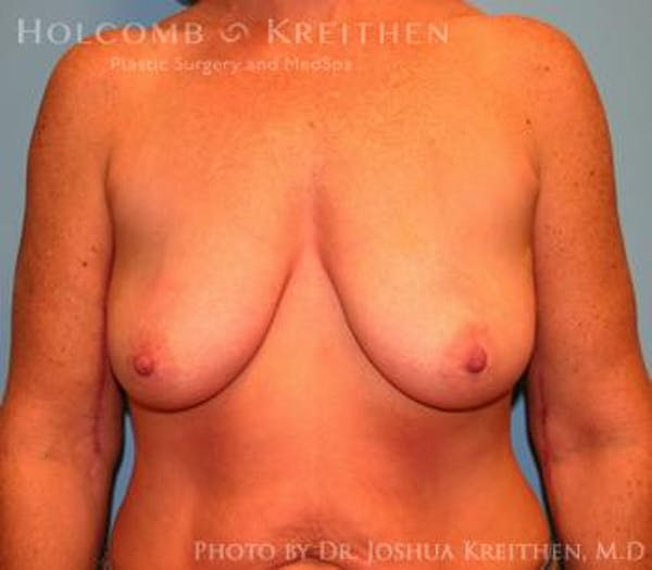 Breast Augmentation with Lift Gallery - Patient 6276480 - Image 1
