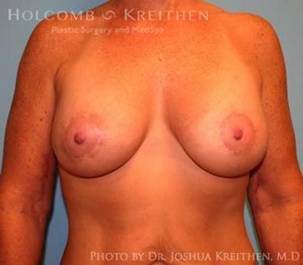 Breast Augmentation with Lift Gallery - Patient 6276480 - Image 2