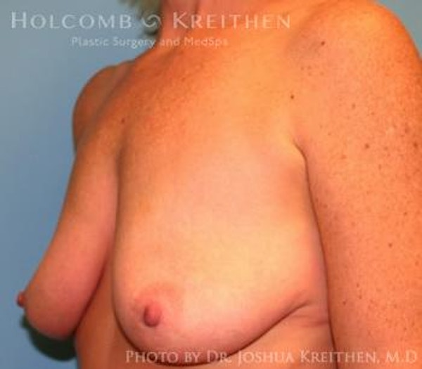 Breast Augmentation with Lift Gallery - Patient 6276480 - Image 3