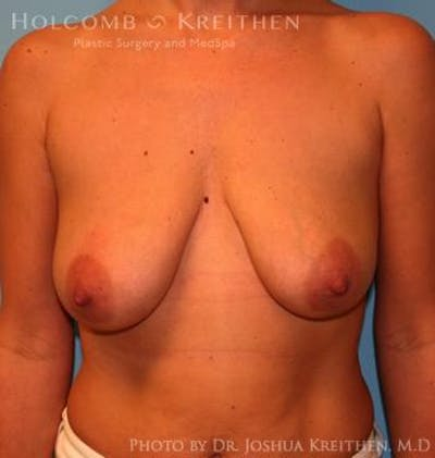 Breast Augmentation with Lift Gallery - Patient 6276482 - Image 13