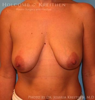 Breast Augmentation with Lift Gallery - Patient 6276482 - Image 1